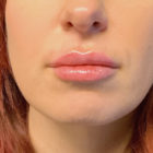 An After Photo of Restylane L Lip Filler In Bellevue, Kirkland, and Lynnwood