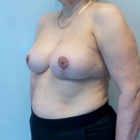 An After Photo of a Breast Revision Plastic Surgery by Dr. Craig Jonov in Bellevue, Kirkland, and Lynnwood