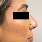 An After Photo of a Non-Surgical Rhinoplasty by Dr. Craig Jonov in Bellevue, Kirkland, and Lynnwood