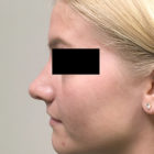 An After Photo of a Rhinoplasty Plastic Surgery by Dr. Craig Jonov in Bellevue, Kirkland, and Lynnwood