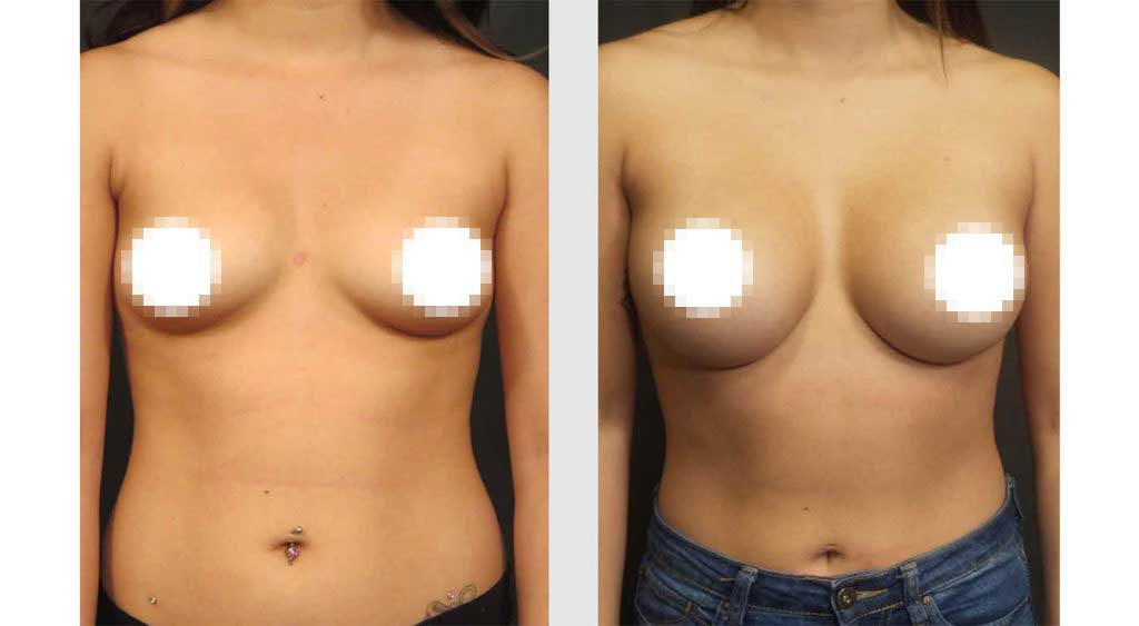 A Before and After Photo of a Breast Augmentation Plastic Surgery by Dr. Craig Jonov in Bellevue, Kirkland, and Lynnwood