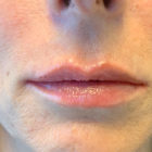 An Photo of Lip Filler Injections in Bellevue, Kirkland, and Lynnwood