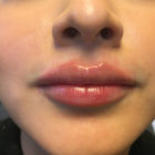 An After Photo of Restylane Defyne Lip Filler in Bellevue, Kirkland, and Lynnwood