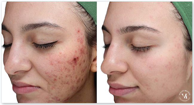 A Before and After Photo of a VI Peel Chemical Peel For Acne