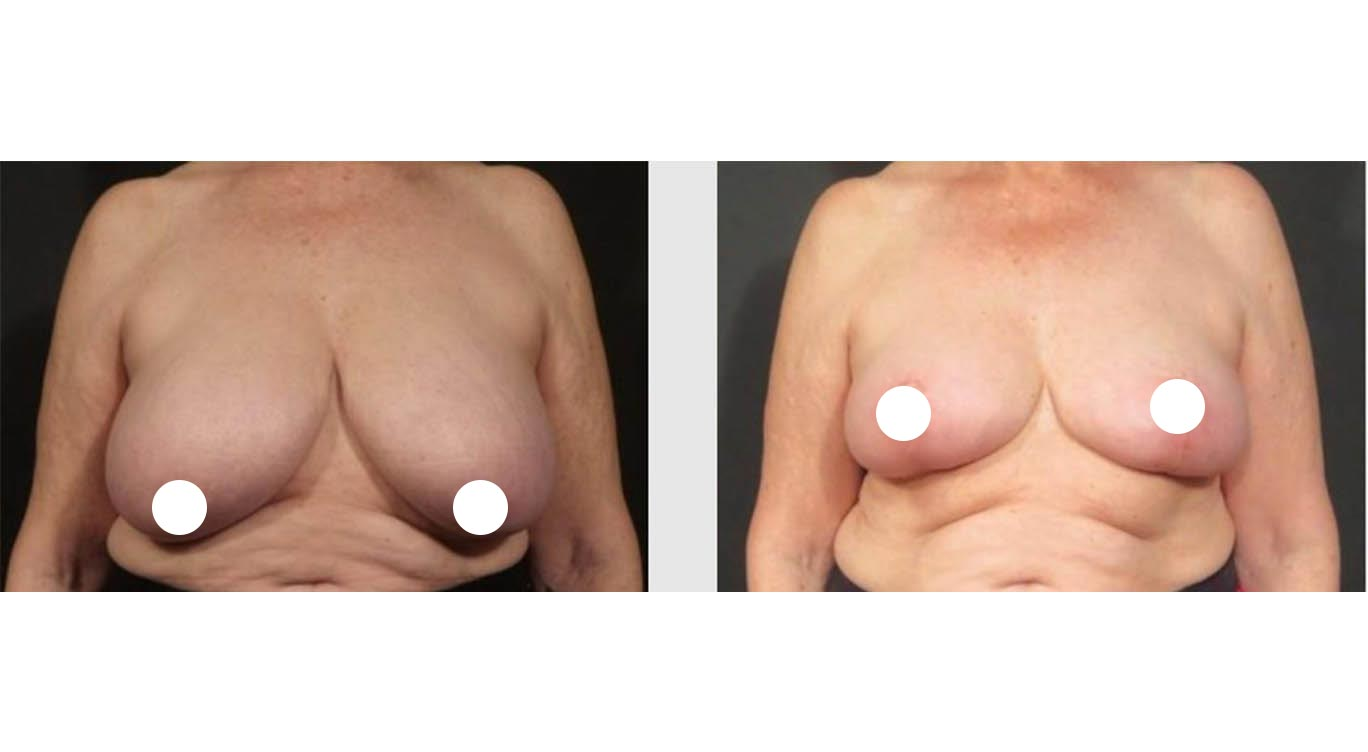A Before & After Breast Reduction Plastic Surgery by Dr. Craig Jonov in Bellevue and Kirkland