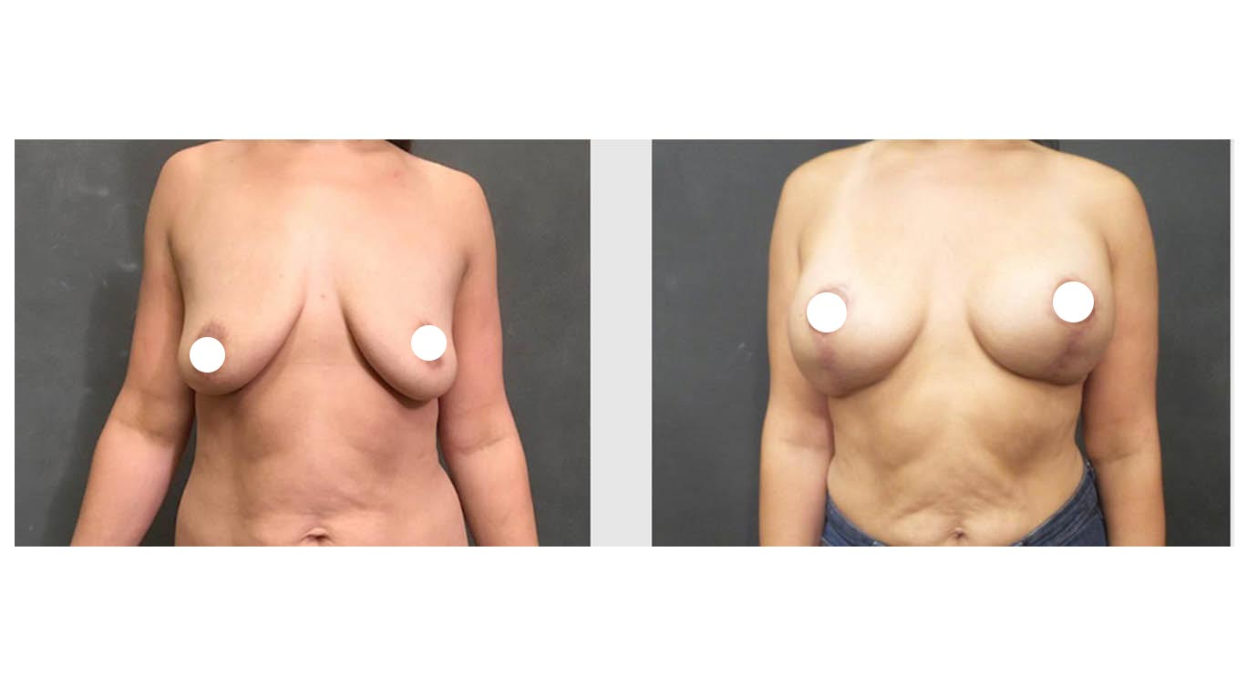 A Before and After Photo of a Breast Augmentation with Lift by Dr. Craig Jonov in Bellevue, Kirkland, and Lynnwood