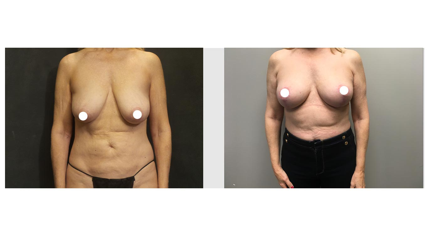 A Before and After Photo of a Auto Breast Augmentation Plastic Surgery by Dr. Craig Jonov in Bellevue, Kirkland, and Lynnwood