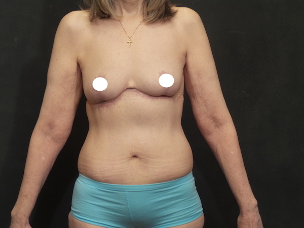 An After Photo of a Reverse Tummy Tuck Plastic Surgery by Dr. Craig Jonov in Bellevue, Kirkland, and Lynnwood
