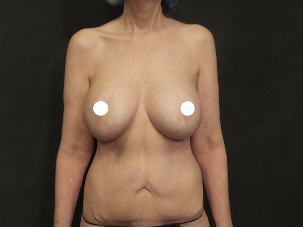 A Before Photo of a Reverse Tummy Tuck Plastic Surgery by Dr. Craig Jonov in Bellevue, Kirkland, and Lynnwood