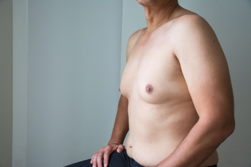 A Photo For A Blog Post About How To Know If You Have Gynecomastia