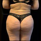 An After Photo of a Brazilian Butt Lift Plastic Surgery by Dr. Craig Jonov in Bellevue and Kirkland